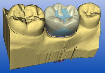 imagen 3d boca